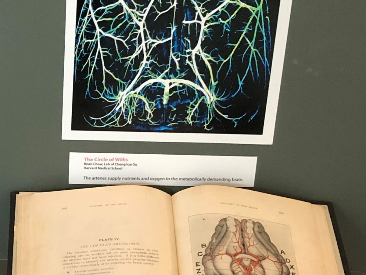 Image of brain arteries and historic book in display case.