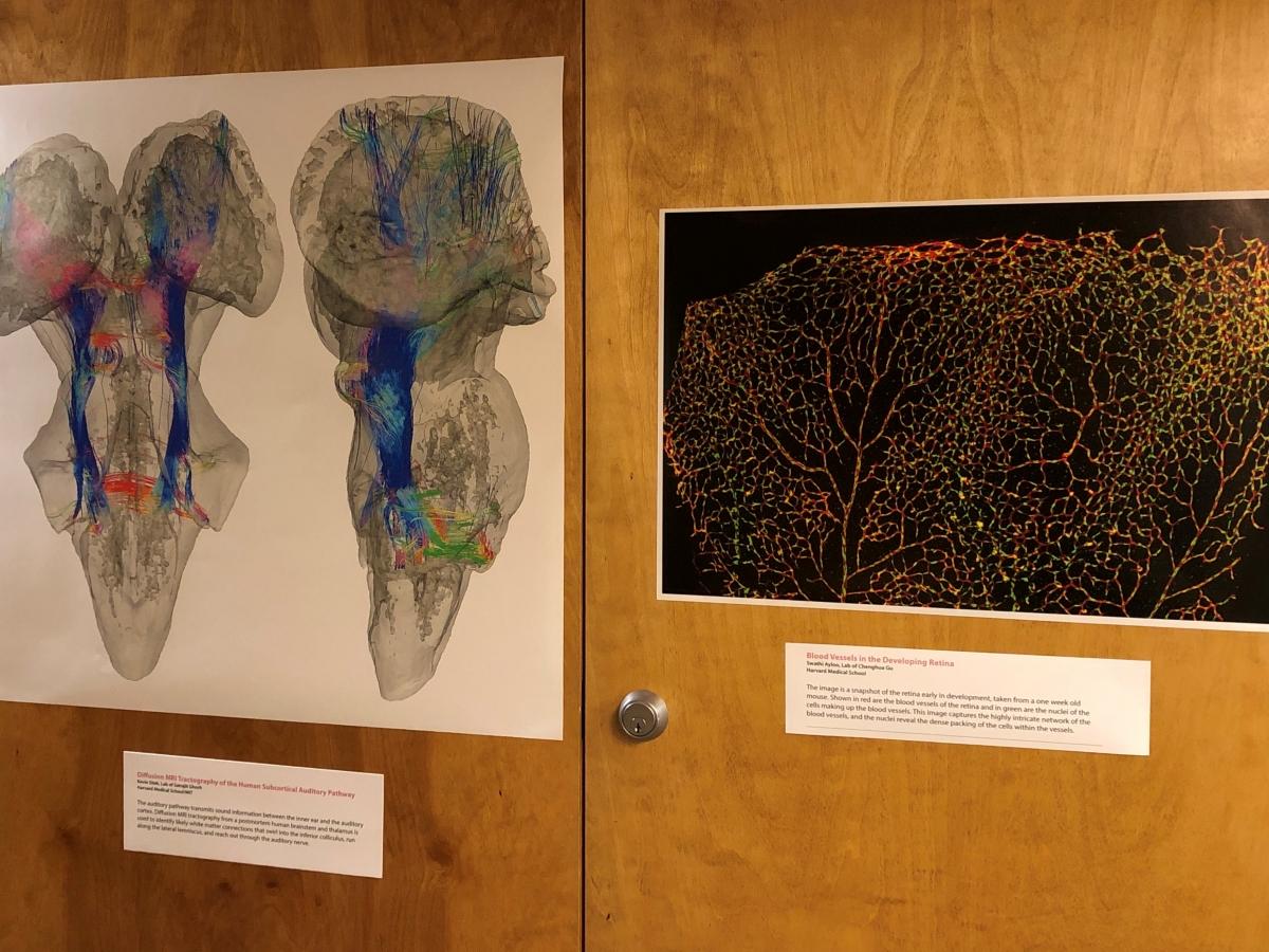 neuroscience images displayed on wooden door