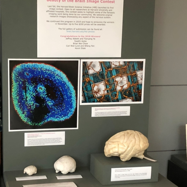 Brain science images and models in a display case.